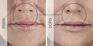 Equilybra | Trattamento anti-age contro rughe e solcature | Acido ialuronico per rughe labbra (codice a barre)
