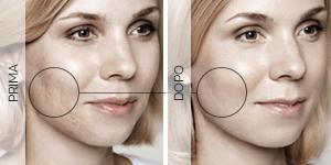 Equilybra | Trattamento anti-age contro rughe e solcature | Radiofrequenza viso e trattamento pre anti-age
