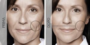 Equilybra | Trattamento anti-age contro rughe e solcature | Filler guancia incavata