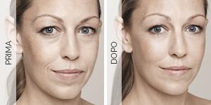 Equilybra | Trattamento anti-age contro rughe e solcature | Radiofrequenza viso e trattamento anti-age profondo e ristrutturante
