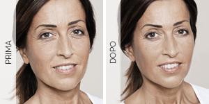 Equilybra | Trattamento anti-age contro rughe e solcature | Lifting cosmetico