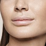 Ambulatorio medico Equilybra | Filler labbra | filler, botulino, anticellulite