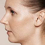 Equilybra | Peeling chimico | filler, botulino, anticellulite