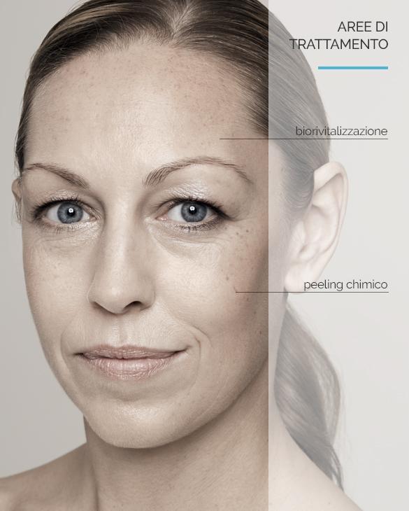Equilybra | Trattamenti biorivitalizzanti per viso, collo e décolleté