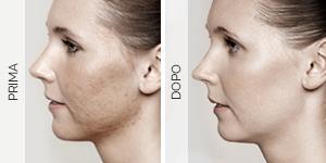 Equilybra | Trattamenti biorivitalizzanti per viso, collo e décolleté | Peeling chimico
