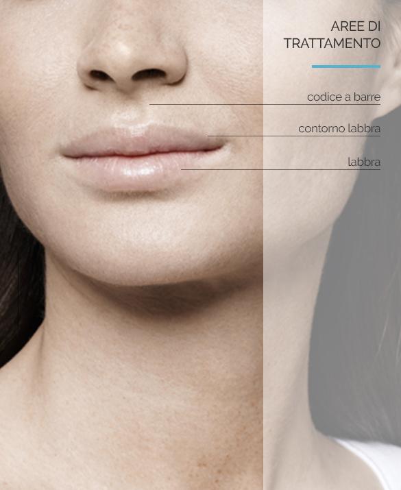 Equilybra | Acido ialuronico e filler labbra